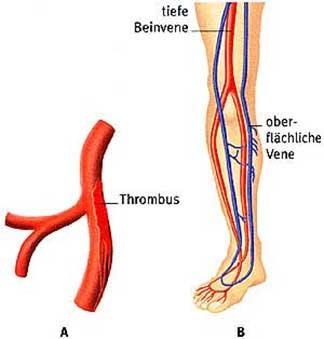 Borowaja matka bei der Thrombophlebitis